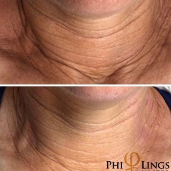 PhiLings Example Image Neck.2