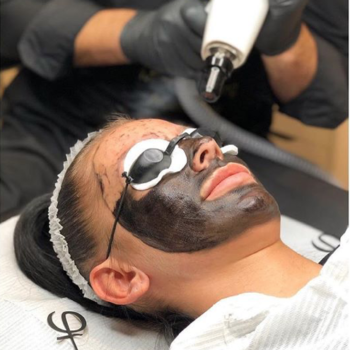 PhiLaser Carbon Facial